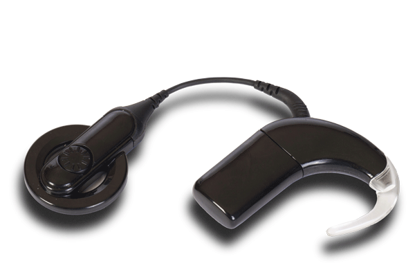 Mapping the Cochlear Implant - A Parent's Guide to Understanding a Cochlear Implant Programming