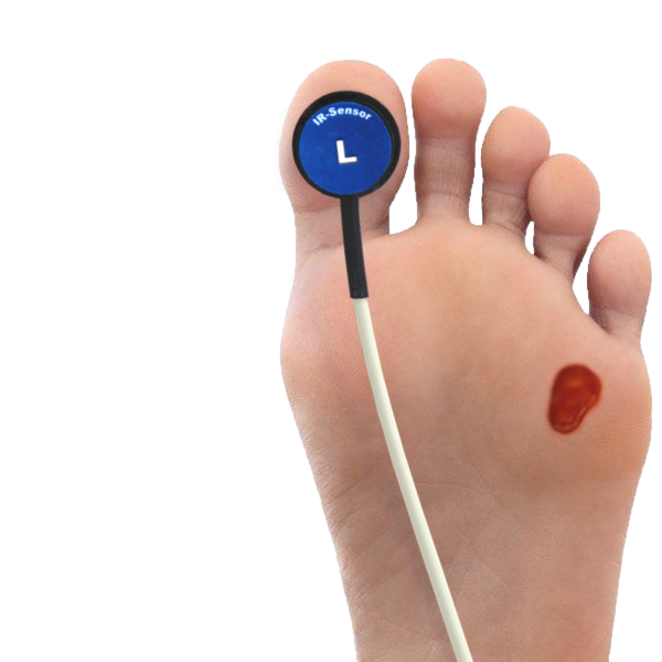 Podiatry Coding: New Codes for Diabetic Foot Ulcer Treatment